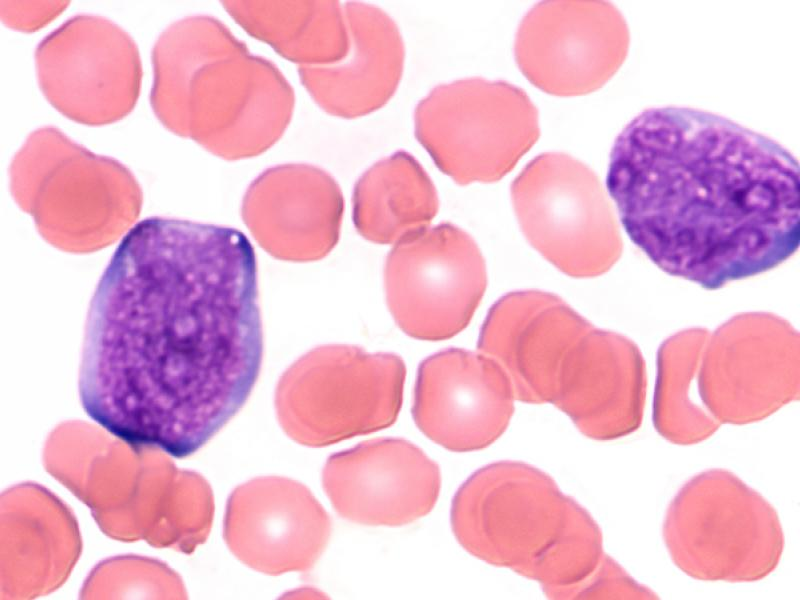 leukemia cancer cells